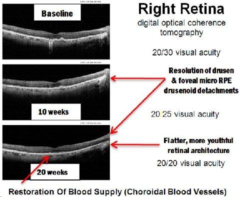 Retina - tomography