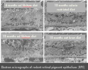 Electron Micrographs of rodent retinal pigment epithelium